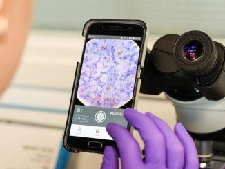 BacilAI - Imaging Medico con l'AI